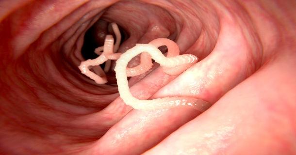 Oczyszczanie organizmu z pasożytów i intruzów